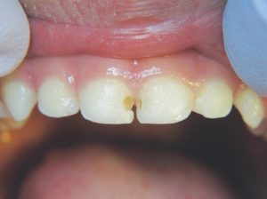 Image of teeth before using silver diamine fluoride